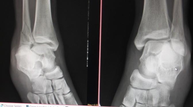 フィリピンの病院で再検査したら、骨が3箇所折れていたことが判明。