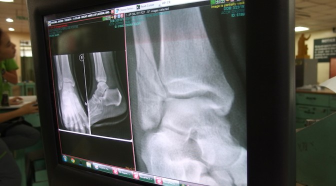 足首の骨折は順調に回復してたけど、ギプスは取れなかった・・・。