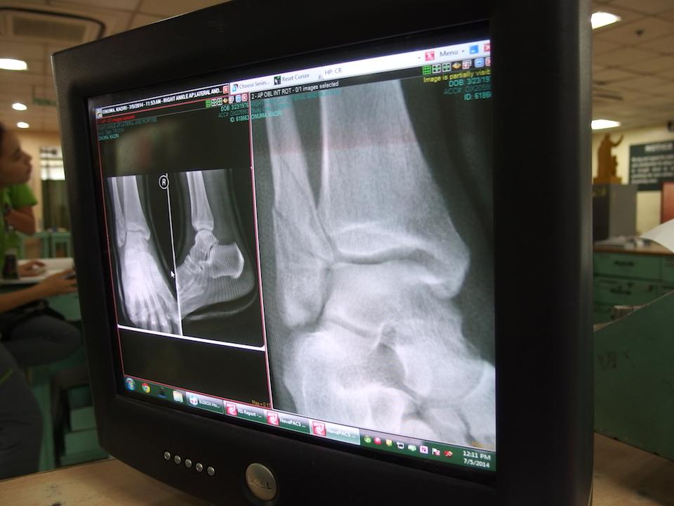 順調に回復している足のレントゲン