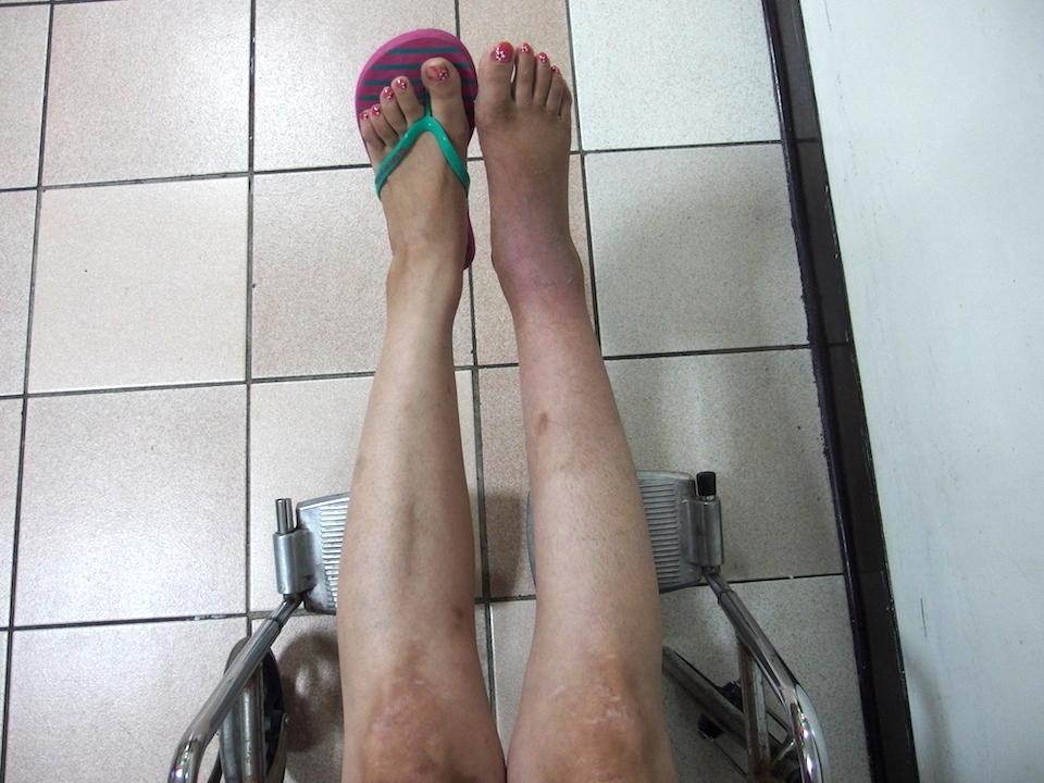 フィリピン留学で骨折してギブス生活、右足は細くなっている。歩けるか不安